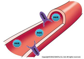 AGE血管