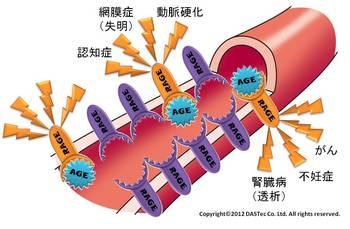 RAGE病気血管