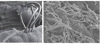 セグメント細菌